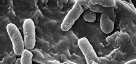 Opname met SEM-elektronenmicroscoop van een kolonie P. aeruginosa. Deze universele ziektenverwekker richt zich op zowel planten als dieren, waaronder de mens.