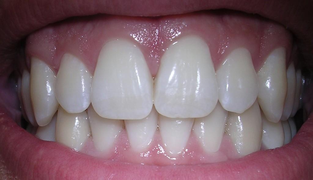 Gaatjes vullen en kronen zijn lapwerk. Wat we willen is een vervangende levende tand. - Wikimedia Commons