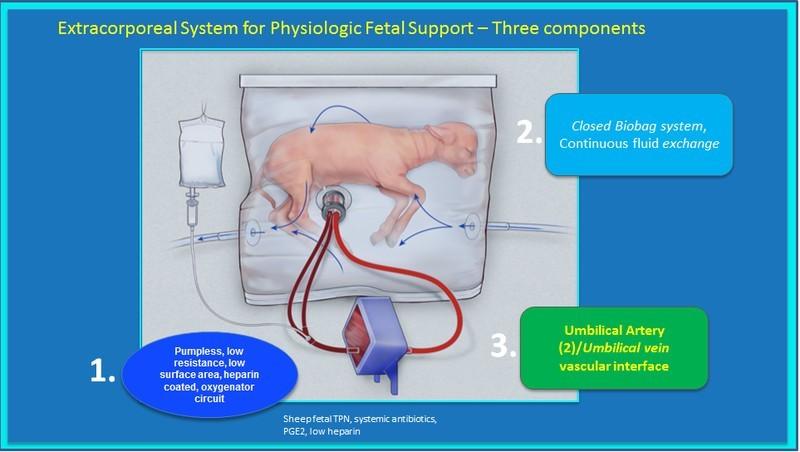 De kunstbaarmoeder bevat een voedings- en oxygenatiesysteem, maar geen pomp. Bron: Philadelphia KInderziekenhuis